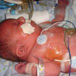 Every Day is a Miracle: Birth Defect Awareness