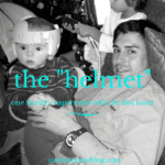 """Finding Out Your Baby Needs a """"Helmet"""""""