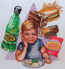 children-obesity