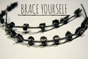 Austin Moms Blog | Prepare to Brace Yourself Luv Braces