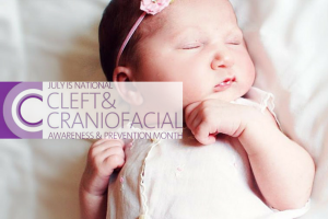 austin-moms-blog-cleft-craniofacial-awareness-month