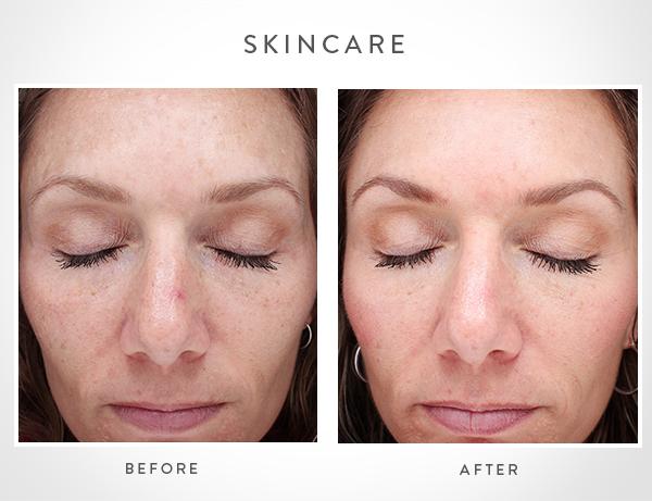 Cosmetic Treatments | Vitalogy Skincare | Austin Moms Blog