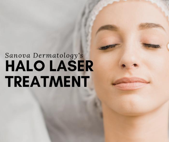 My Halo Laser Treatment At Sanova Dermatology